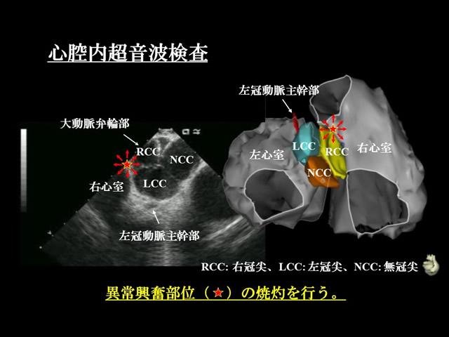 性 期 頻発 収縮 性 心室 外